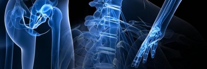 5 atitudes que fortalecem os ossos